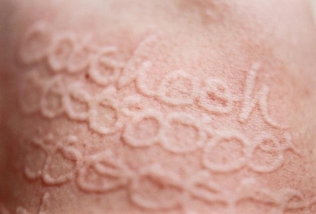 2.set.13 - Ela usa agulhas de crochê para desenhar na pele e transformar os arranhões em suas obras de arte