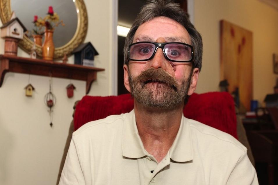 30.nov.2013 - Ao portal britânico Mirror, Donnie Fritts, que perdeu parte do rosto em uma cirurgia para remover um carcinoma ameloblástico de mandíbula (um tipo raro de câncer), revelou que, em 2011, recebeu uma prótese, mas acabou desenvolvendo uma infecção perigosa e terá de esperar por uma nova prótese