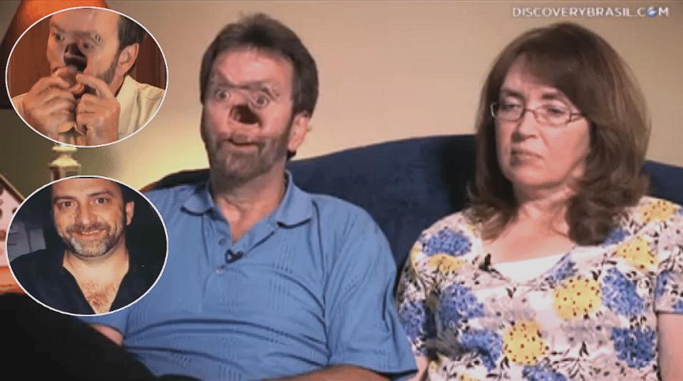 Em 2003, Donnie Fritts teve de fazer uma cirurgia no rosto para remover um carcinoma ameloblástico de mandíbula, um tipo raro de câncer. Após 12 horas de operação, os médicos conseguiram retirar três tumores, mas isso custou parte da face do ex-carpinteiro da Geórgia (EUA). Nos seis anos seguintes, ele passou por 35 cirurgias para tentar recuperar seu rosto. Donnie perdeu o olfato e, para mastigar, precisa retirar o palato. Sua esposa, Sharon, ficou a seu lado durante todo o processo