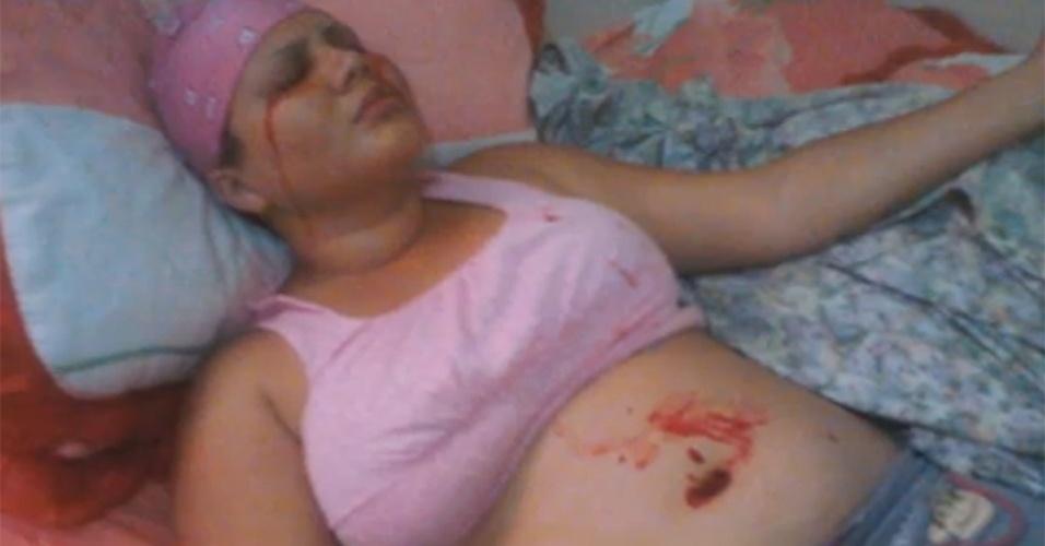 5.dez.2013 - Delfina Cedeño recebeu o diagnóstico de hematidrose, uma doença rara que faz com que a jovem elimine sangue com o suor. O problema atinge uma em 800 milhões de pessoas. A ansiedade causa picos extremos de adrenalina que, por sua vez, aumenta a pressão arterial e faz o corpo expelir sangue como se fosse uma panela de pressão