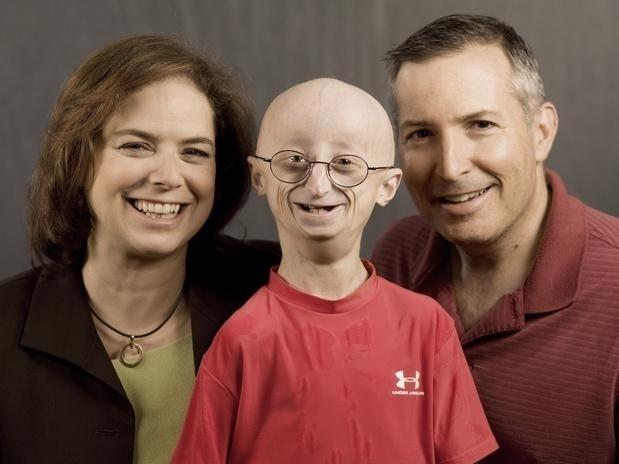 """27.jan.2014 - O adolescente Sam Berns (centro) era conhecido nos EUA, onde vivia, por sua luta contra uma rara doença conhecida como progeria ou síndrome de Hutchinson-Gilford, que causa envelhecimento precoce. No dia 16 de janeiro, em decorrência da doença, ele morreu """"de velhice"""" aos 17 anos. Diagnosticado com pouco menos de dois anos de idade, o garoto superou em muito a expectativa de vida de um portador de progeria, que dificilmente ultrapassa os 13 anos. Em 1999, seus pais (que aparecem na foto com ele), ambos médicos, criaram uma fundação para estudar possíveis causas para o erro genético, que seguem incertas"""