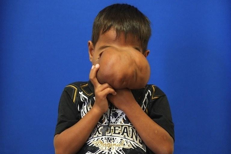 3.jul.2014 - Cirurgiões australianos removeram tumor do rosto de Jhonny Lameon, 7, um menino das Filipinas. A imagem, divulgada nesta quinta-feira (3), mostra o resultado do procedimento. Antes da cirurgia, Jhonny precisava levantar o tumor para poder comer e beber. O garoto sofria de uma encefalocele fronto-nasal grave - um defeito do tubo neural, que fez com que os sacos membranosos se expandissem próximo dos olhos e cobrissem o rosto. A cirurgia foi realizada no Monash Children's Hospital, em Merlbourne, na Austrália
