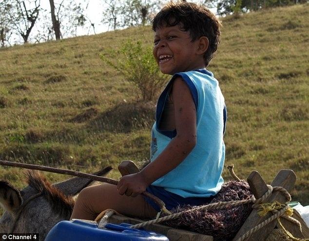 """10.jul.2014 - Aos oito anos, garoto conhecido como """"menino tartaruga"""" viajou da Colômbia para o Reino Unido para remover um tumor que desenvolveu devido a uma doença rara congênita, diagnosticada em 2011. O cirurgião que cuidou do caso disse ao Daily Mail que era o caso mais extremo desse tipo que ele já tinha visto. O tumor correspondia a 20% do peso corporal do pequeno Didier Montalvo. """"Era como se ele carregasse um saco de batatas nas costas e isso interferia em muitas coisas no estilo de vida dele"""", avaliou o médico"""