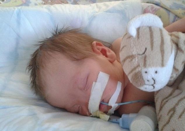 """5.ago.2014 - O nascimento de Tessa Evans teve algumas complicações. Gráinne, mãe da menina, disse que apesar de saber da condição da filha, ficou preocupada ao vê-la. """"Eu estava em choque e congelei. A parteira cortou o cordão antes que eu pudesse dizer qualquer coisa, e levaram Tessa para longe de mim. Os médicos conseguiram estabilizá-la para que ela pudesse respirar sozinha e, depois fui autorizada a segurá-la durante alguns segundos"""", lembrou ela em entrevista ao Daily Mail. Tessa também nasceu com outros problemas relacionados a sua condição, incluindo um pequeno buraco no coração e problemas de visão. Ela precisou passar as primeiras cinco semanas de vida em uma unidade de terapia intensiva neonatal. Com 11 semanas de vida, ela passou por uma cirurgia para remover uma catarata no olho esquerdo, mas devido a complicações, Tessa ficou cega desse olho. Além disso, a menina também precisou de uma traqueostomia equipada para permitir que ela respire enquanto come e dorme"""