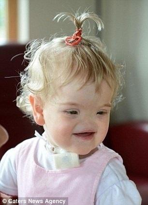 5.ago.2014 - Tessa Evans sofre de uma condição rara conhecida como arinia congênita completa, que faz com que ela não tenha nariz. Os pais dela descobriram o fato ainda na gravidez, quando a doença foi detectada em uma ecografia 3D feita na vigésima semana de gestação, mostrando o perfil facial do feto totalmente plano. Ainda nessa época, os médicos alertaram sobre possíveis complicações e prepararam os pais para possíveis decisões importantes, como precisar interromper a gestação. No entanto, o acompanhamento semanal e outros testes mostraram que Tessa era perfeitamente saudável e que tudo ia bem, apesar da falta da estrutura nasal