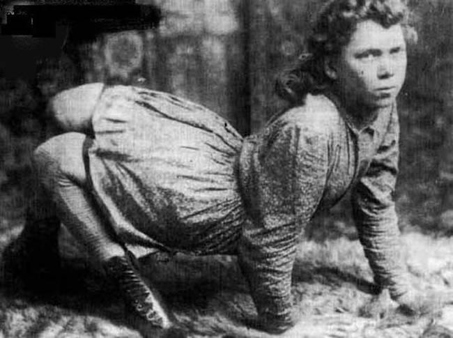 """4.nov.2014 - Ella Harper nasceu nos EUA por volta de 1870 com um problema ortopédico raro, que resultava em uma deformidade que fazia seus joelhos serem dobrados para trás. A história de Ella é bastante conhecida e até hoje fotos suas circulam pela web. Devido a deformidade, a garota preferia andar de quatro e acabou ganhando o apelido de """"The Camel Girl"""" (ou """"Garota Camelo"""", em tradução literal). Ela virou estrela do circo """"W. H. Harris's Nickel Plate Circus"""" e fez muito sucesso. Os jornais da época se referiam a ela como """"A excêntricidade mais maravilhosa da natureza desde a criação do mundo"""""""