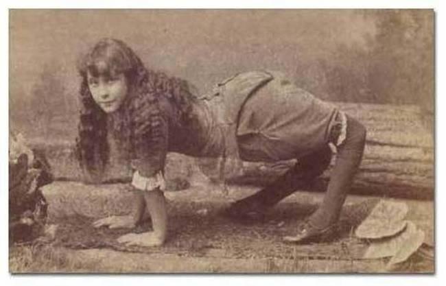 """4.nov.2014 - Ella Harper nasceu nos EUA por volta de 1870 com um problema ortopédico raro, que resultava em uma deformidade que fazia seus joelhos serem dobrados para trás. A história de Ella é bastante conhecida e até hoje fotos suas circulam pela web. Devido a deformidade, a garota preferia andar de quatro e acabou ganhando o apelido de """"The Camel Girl"""" (ou """"Garota Camelo"""", em tradução literal). Ela virou estrela do circo """"W. H. Harris's Nickel Plate Circus"""" e fez muito sucesso. Os jornais da época se referiam a ela como """"A excêntricidade mais maravilhosa da natureza desde a criação do mundo"""". A natureza do problema de Ella ainda é desconhecida, mas alguns médicos classificam como uma forma avançada da """"Deformidade dos Joelhos Dobrados"""""""