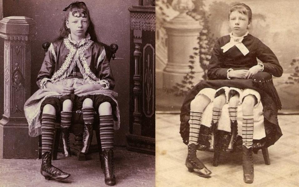 """6.nov.2014 - Josephine Myrtle Corbin nasceu em 1868 nos EUA com uma anomalia rara. Ela possuía outro corpo completamente duplicado apenas da cintura para baixo, incluindo dois sistemas reprodutores e excretores. A garota conseguia mexer todas as quatro pernas, mas somente as externas e maiores possuíam força para andar. Sua condição a tornou uma celebridade, que viajava por todo o país para se apresentar em feiras e espetáculos em circos. Aos 14 anos, fechou um contrato para ganhar US$ 250 por semana se apresentando por um circo, o que era uma quantia extraordinária para a época. Após algum tempo, ela se """"aposentou"""" e, aos 19 anos, se casou com o médico Clinton Bicknell, com quem teve cinco filhos, três de um útero e dois do outro. Quando os filhos já estavam crescidos, a """"mulher de quatro pernas"""", como era conhecida, voltou a se apresentar com o circo recebendo um salário de US$ 450 semanais. Ela morreu em 1928, aos 60 anos de idade"""