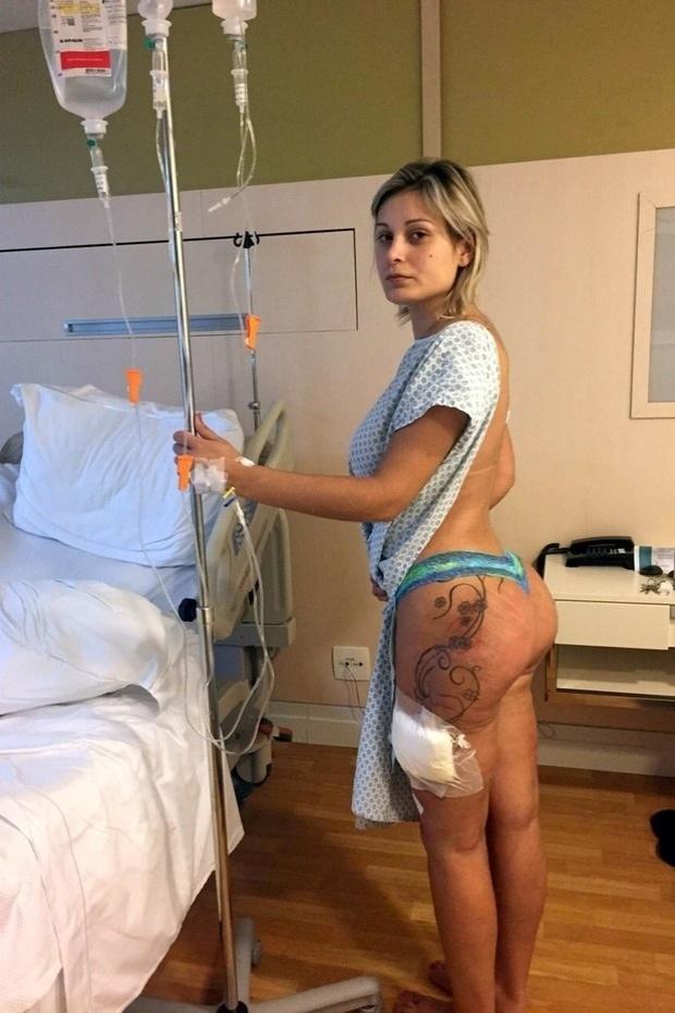 Andressa Urach mostra como ficou o seu bumbum após inflamação