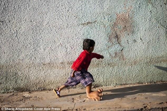 """10.mar.2015 - De acordo com Dr. Manibhai Patel, que dirige uma clínica particular em Deesa, Gujarat, a condição de Verdant não é curável, mas não representa riscos para sua vida. """"Durante a minha carreira de 35 anos, jamais vi um paciente como ele. Seu pé parece ser uma doença genética, mas não posso determinar a causa real, de modo que eu não posso recomendar qualquer medicamento ou até mesmo cirurgia. Mas eu não acredito que seja uma ameaça à vida"""", relatou o especialista."""