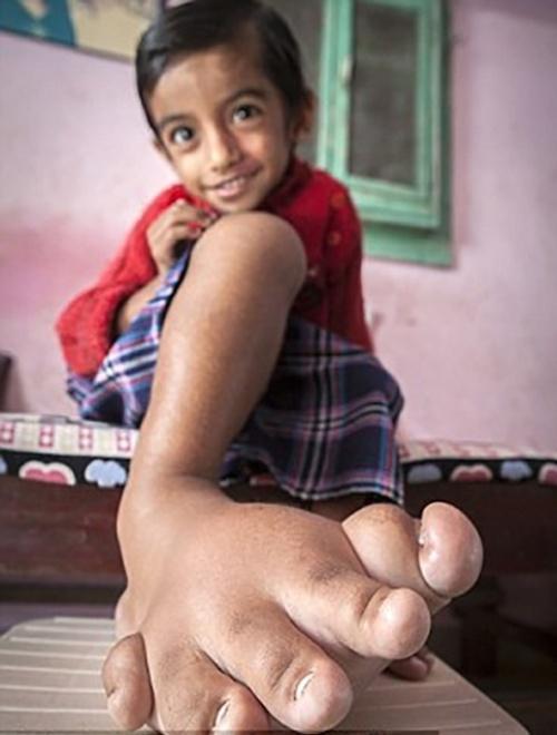 10.mar.2015 - Na imagem, o detalhe do pé direito de Verdant, que pesa 5 kg, o mesmo peso de uma bola de boliche