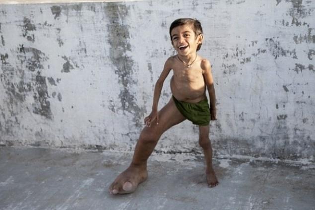 10.mar.2015 - O caso do garoto indiano Verdant Joshi, de 4 anos, intriga os médicos. Vivendo em Gujarat, no oeste da Índia, Joshi nasceu com o pé direito bem maior do que o esquerdo. O membro pesa 5 kg, o mesmo peso de uma bola de boliche. Apesar de sua condição, o garoto vive normalmente. Ele nunca deixou de andar ou correr e não sente dor. O pai, Dilip Kumar Joshi, de 30 anos, já procurou diversos especialistas, mas nenhum conseguiu diagnosticar a causa do problema do pequeno Joshi. Veja mais fotos a seguir