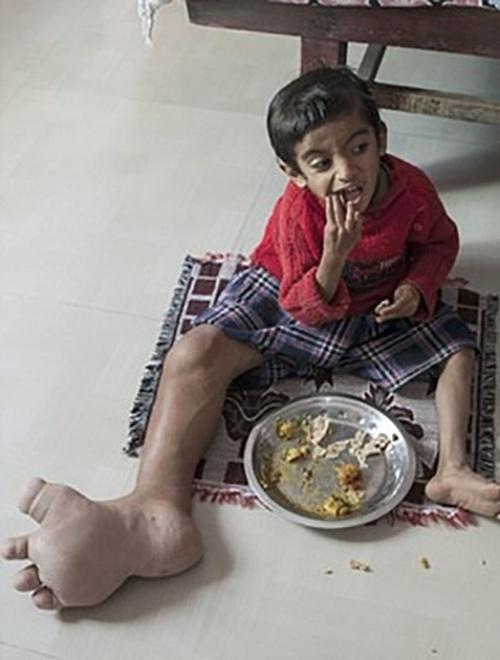 """10.mar.2015 - Por sofrer bullying dos colegas, Verdant não frequenta a escola. O garoto vive em um casa de dois cômodos, onde ele passa o dia brincando com sua mãe, Jayshree Joshi, de 26 anos, e sua irmã Vrisha, de apenas 1 ano. """"As crianças riem porque eu não consigo correr rápido"""", declarou"""