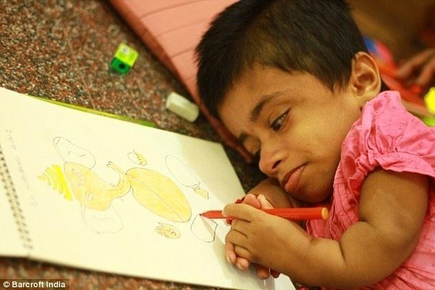 """7.abr.2015 -  Girija Srinivas pode parecer uma criança, mas, na verdade, ela é uma jovem de 19 anos """"presa"""" no corpo de uma criança de dois anos de idade. A indiana de Bangalore nasceu com agenesia congênita, doença que impede o desenvolvimento dos membros. Além da pequena estatura, ela pesa cerca de 12 kg. Mesmo dependendo da família para fazer as necessidades básicas, Girija sonha com a carreira de artista - ela faz pinturas e vende para ajudar os pais. Girija ganha o equivalente a R$ 80 por quadro. O pai é alfaiate, e a mãe dedica tempo integral para cuidar da garota. """"Eu não quero ser popular por causa da minha condição rara de saúde. Eu quero ser famosa pela minha arte. Eu não quero simpatia, eu quero reconhecimento"""", desabafou a jovem."""