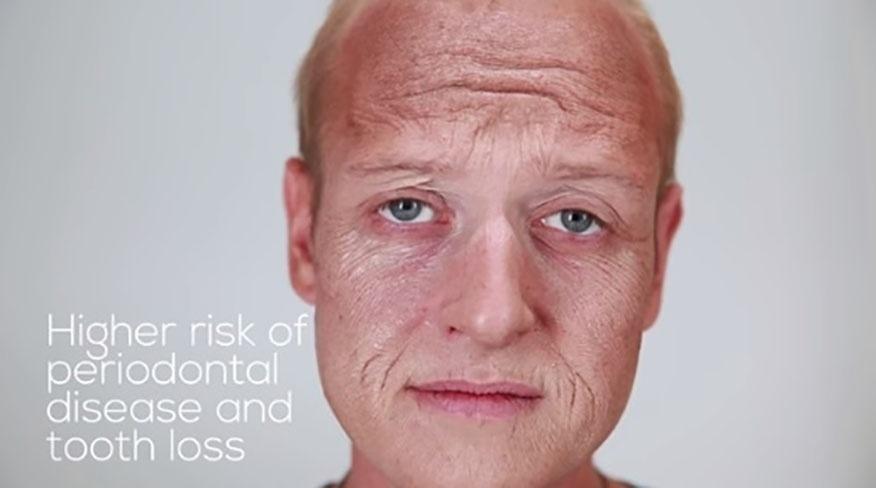 8.set.2015 - O resultado dos efeitos do cigarro na aparência das pessoas. Na imagem, é possível notar o excesso de rugas