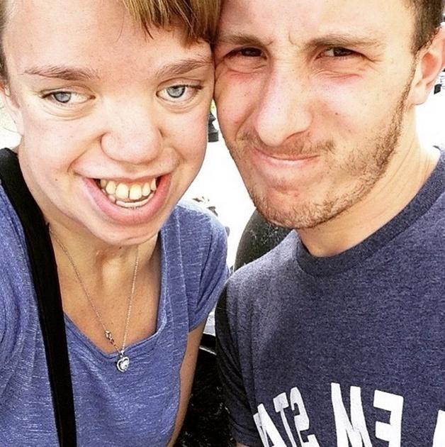 """3.set.2015 - A estudante norte-americana Renee Dushane, portadora de uma síndrome genética rara, conhecida como Síndrome de Pfeiffer, bombou na web com um post inspirador em seu Tumblr. A doença da jovem faz com que ela tenha uma má formação nos ossos da face. Mas foi a partir disso que Renee decidiu desabafar sobre sua situação, publicando a seguinte legenda. """"Essa não é uma garota bronzeada, usando maquiagem, com um cabelo perfeitamente liso e com um sorriso perfeito. Esta é uma garota com Síndrome de Pfeiffer, que luta diariamente para se sentir bem com sua aparência"""". A imagem ganhou repercussão na web, e a garota chegou a escrever um texto para o portal Huffington Post"""