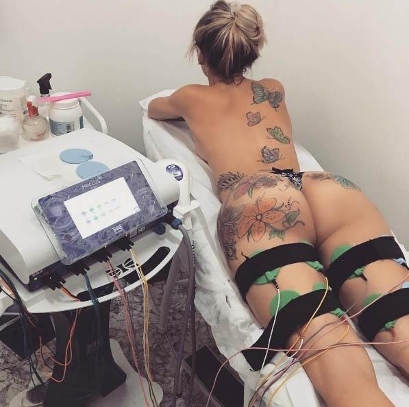10.jun.2016 - Thalita Zampirolli não fica um dia sem cuidar do corpão. A transexual postou nas redes sociais imagens que mostram um dos procedimentos estéticos da cata, para ficar com o bumbum e as coxas bem torneadas. As tatuagens da bela, que vão até o bumbum, também ficaram em evidência