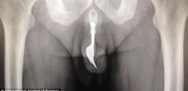 Australiano enfiou um garfo dentro do canal da uretra e foi parar no médico