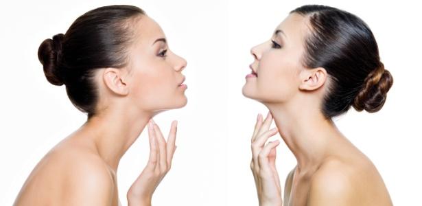 Cuidados diários com hidratação e proteção solar evitam que a formação de vincos e manchas no pescoço