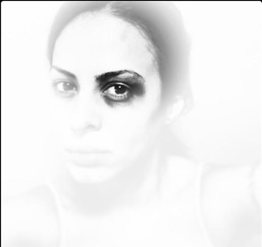 """16.jun.2013 - A cantora Alinne Rosa participa do protesto fotográfico """"Dói em Todos Nós"""", do fotógrafo Yuri Sardenberg. Nas imagens, os artistas aparecem com o olho roxo, referência aberta à repórter Giuliana Vallone, do jornal """"Folha de S.Paulo"""", que foi atingida por uma bala de borracha no olho durante as manifestações contra o aumento das tarifas de ônibus, em São Paulo. A cantora publicou a imagem com as hashtags #DóiEmTodos #OgiganteAcordou #BrasilUnido"""