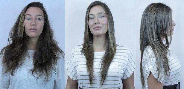 A produtora executiva Nathalia Gladek, 30 anos, de Barueri (SP), que fez a primeira exoplastia em junho