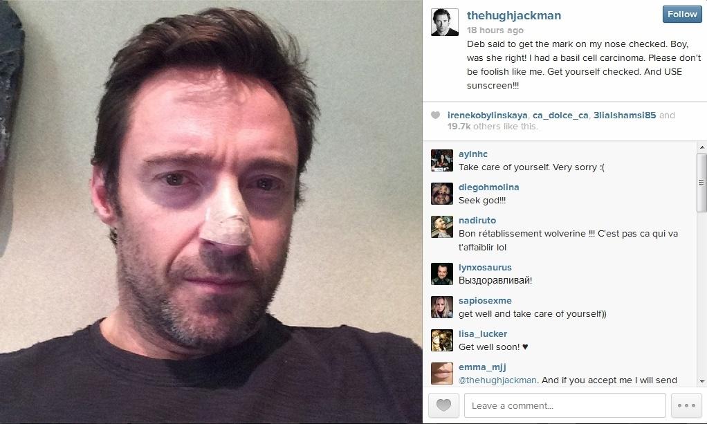 21.nov.2013 - Hugh Jackman publica foto com curativo no nariz. Ator revelou que teve câncer de pele no nariz