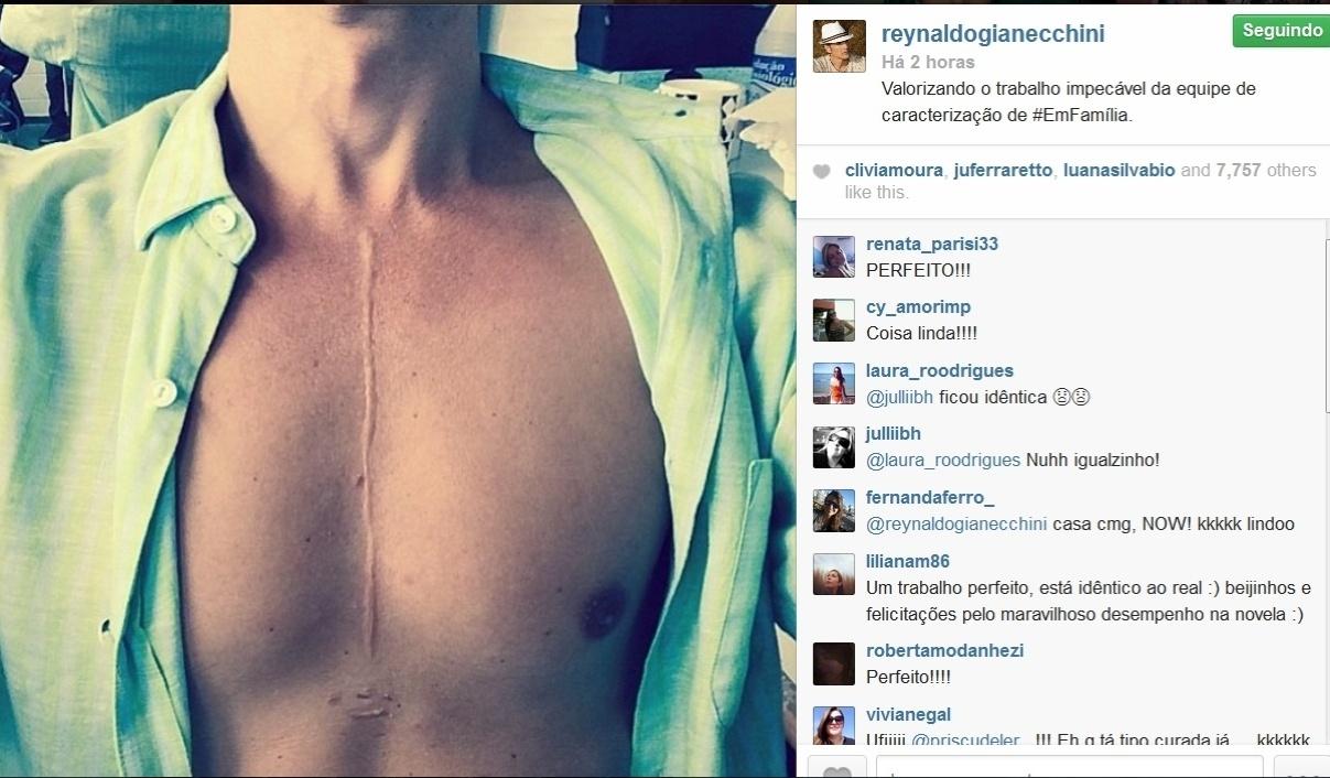 19.mai.2014- Reynado Gianecchini elogia a perfeição da cicatriz de Cadu, seu personagem de
