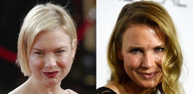 Antes e depois do rosto da atriz Renée Zellweger
