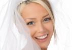 Veja dicas para conquistar um sorriso deslumbrante antes do seu casamento - Getty Images