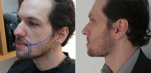 Antes e depois: o analista de comércio exterior Vagner Henrique da Rocha mostra o resultado do procedimento de implante de pelos no rosto