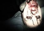Resident Evil VII -