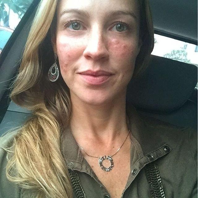 19.mai.2016 - Luana Piovani cansou das sardas expostas no rosto e resolveu se submeter a um tratamento dermatológico na tarde desta quinta-feira (19) para retirá-las. Assim que deixou a clínica, a atriz fez uma selfie do resultado