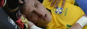 Possível desfalque: David Luiz deixa o estádio com suspeita de fratura no nariz e passará por exames