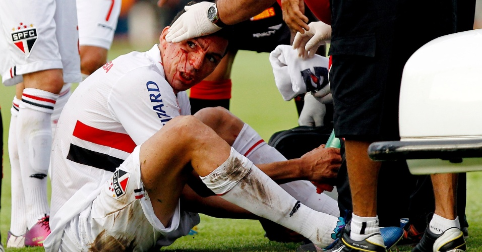 14.jul.2013 - Lúcio, zagueiro do São Paulo, sangra após levar cotovelada de jogador do Vitória, em Salvador