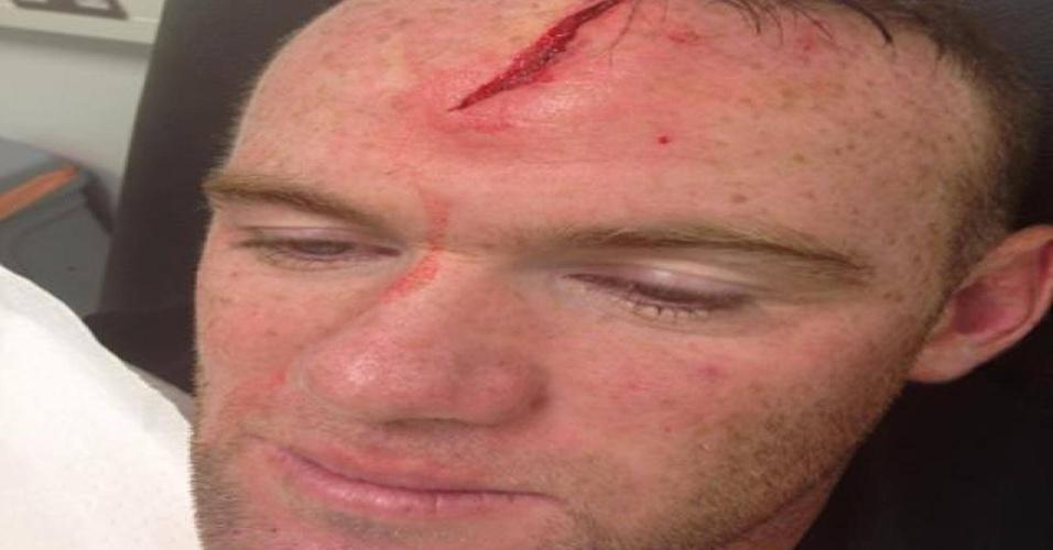 Rooney mostra grave lesão na cabeça