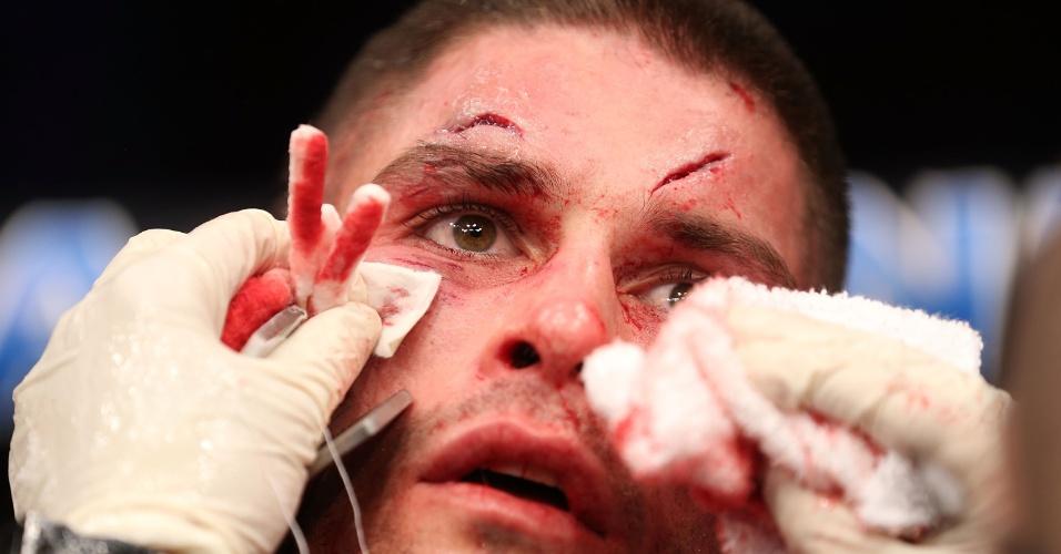 Jeremy Larsen fica com rosto desfigurado depois da luta contra Andre Fili