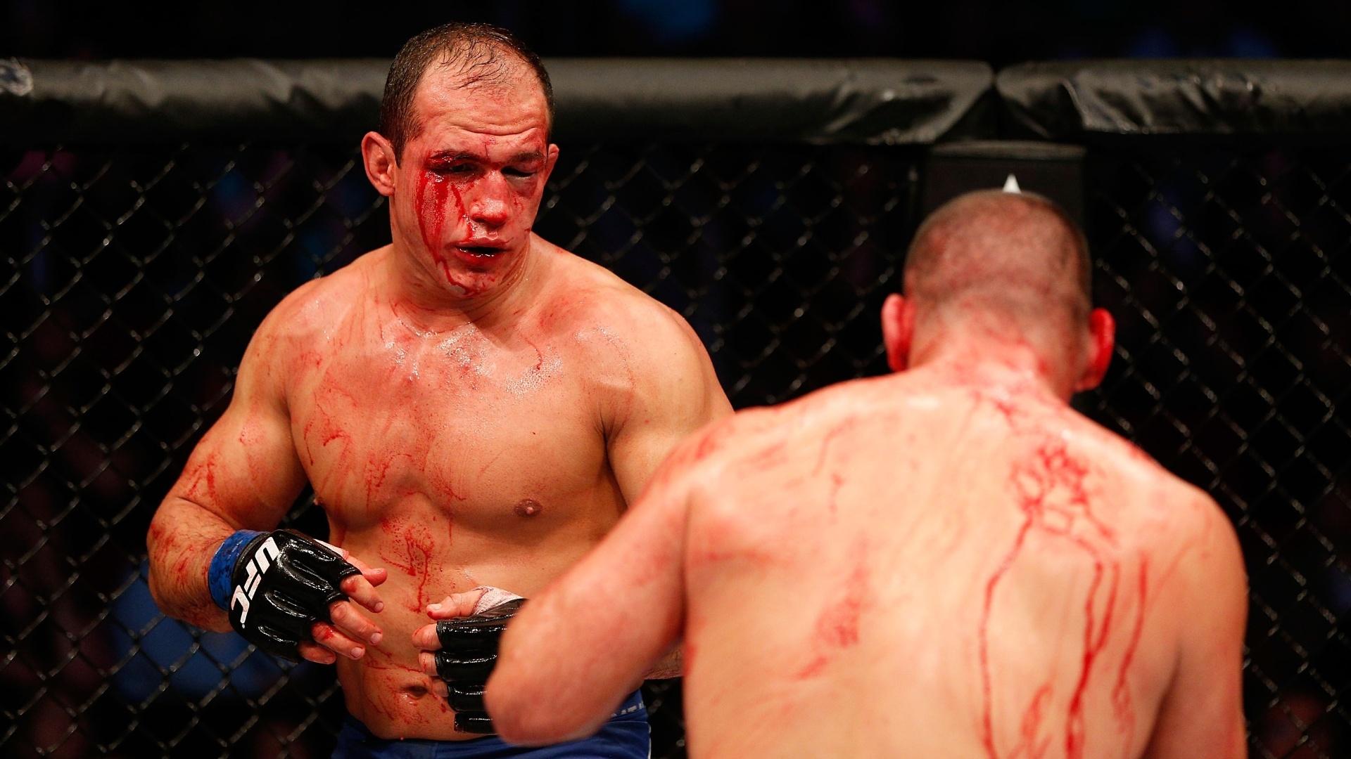 Cigano ficou com o rosto muito machucado após o combate com Velasquez no UFC 166