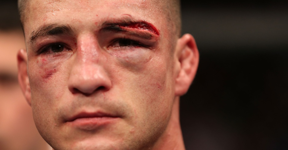Diego Sanchez fica com rosto destruído após a luta contra Gilbert Melendez