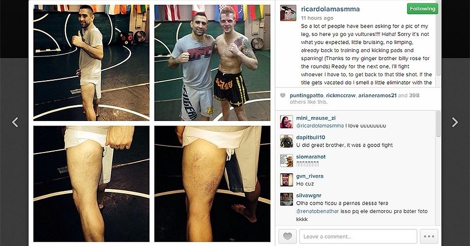 Ricardo Lamas mostra os estragos feitos em sua perna pelos chutes de José Aldo no UFC