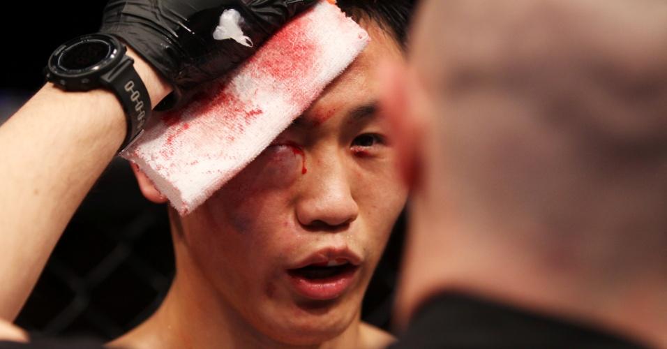 01.mar.2014 - Com o olho bem inchado, Albert Cheng é atendido por um dos médicos do UFC; lutador precisou desistir do combate devido a lesão