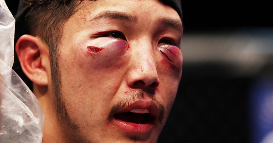 01.mar.2014 - Yui Chul Nam exibe rosto muito inchado e machucado após luta contra Kazuki Tokudome