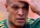 Jogador do Figueirense se envolve em briga, é atropelado e fica desfigurado