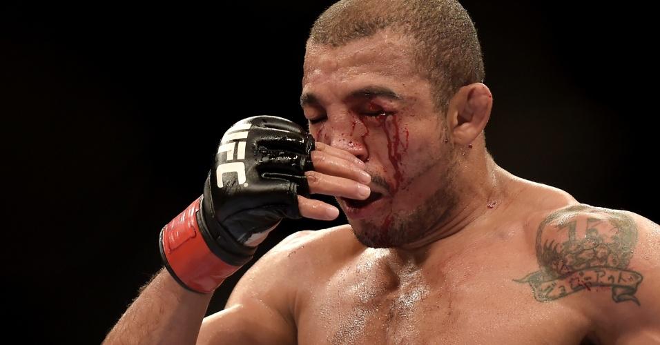 José Aldo fciou desfigurado na luta contra Chad Mendes pelo UFC Rio 5, mas venceu o rival por decisão unânime dos jurados e manteve o cinturão dos penas do UFC Rio 5
