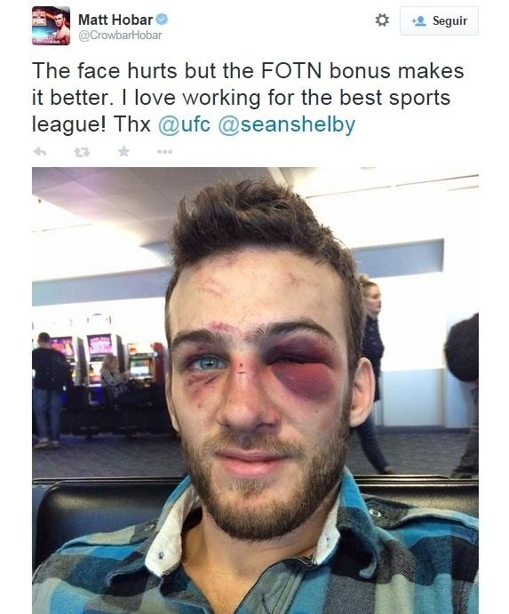 08. dez. 2014 - Matt Hobar mostra rosto machucado após luta