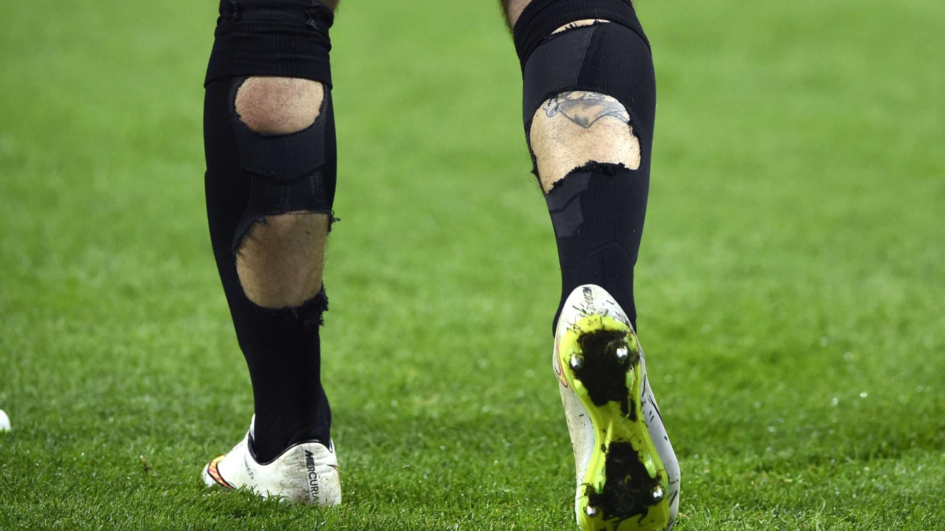 O zagueiro Davide Santon teve seus dois meiões rasgados durante o jogo contra a Fiorentina