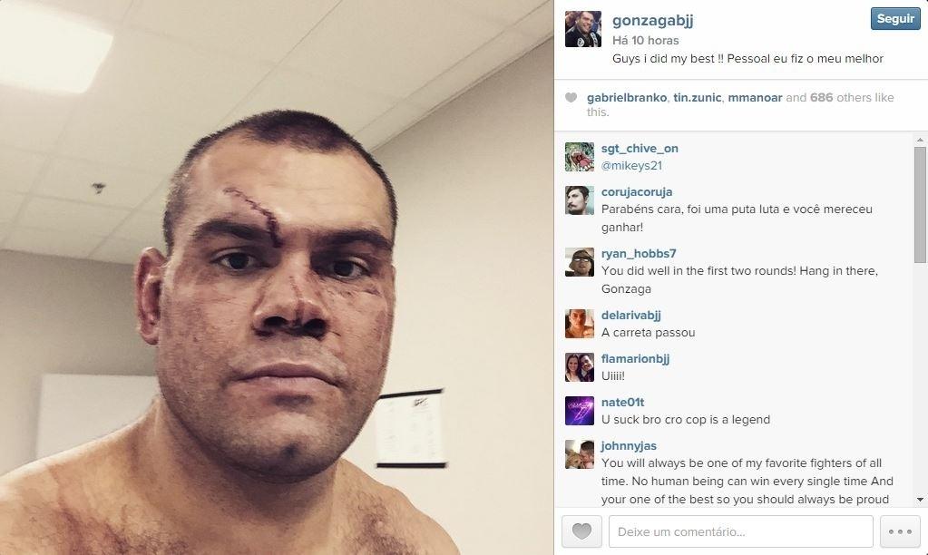 Gabriel Gonzaga, o Napão, posta selfie após a derrota para Cro Cop, pelo UFC da Polônia