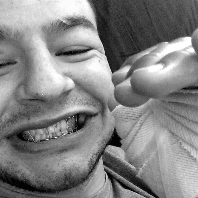 Cub Swanson exibe mandíbula depois da operação