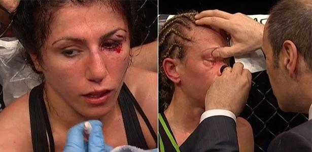 Randa Markos e Jessica Rakoczy ficaram com olhos machucados