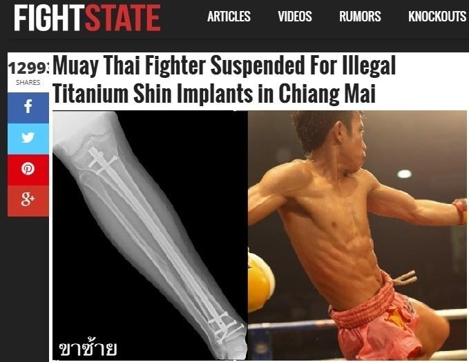 Atleta de muay thai foi suspenso por lutar com prótese de titânio na perna