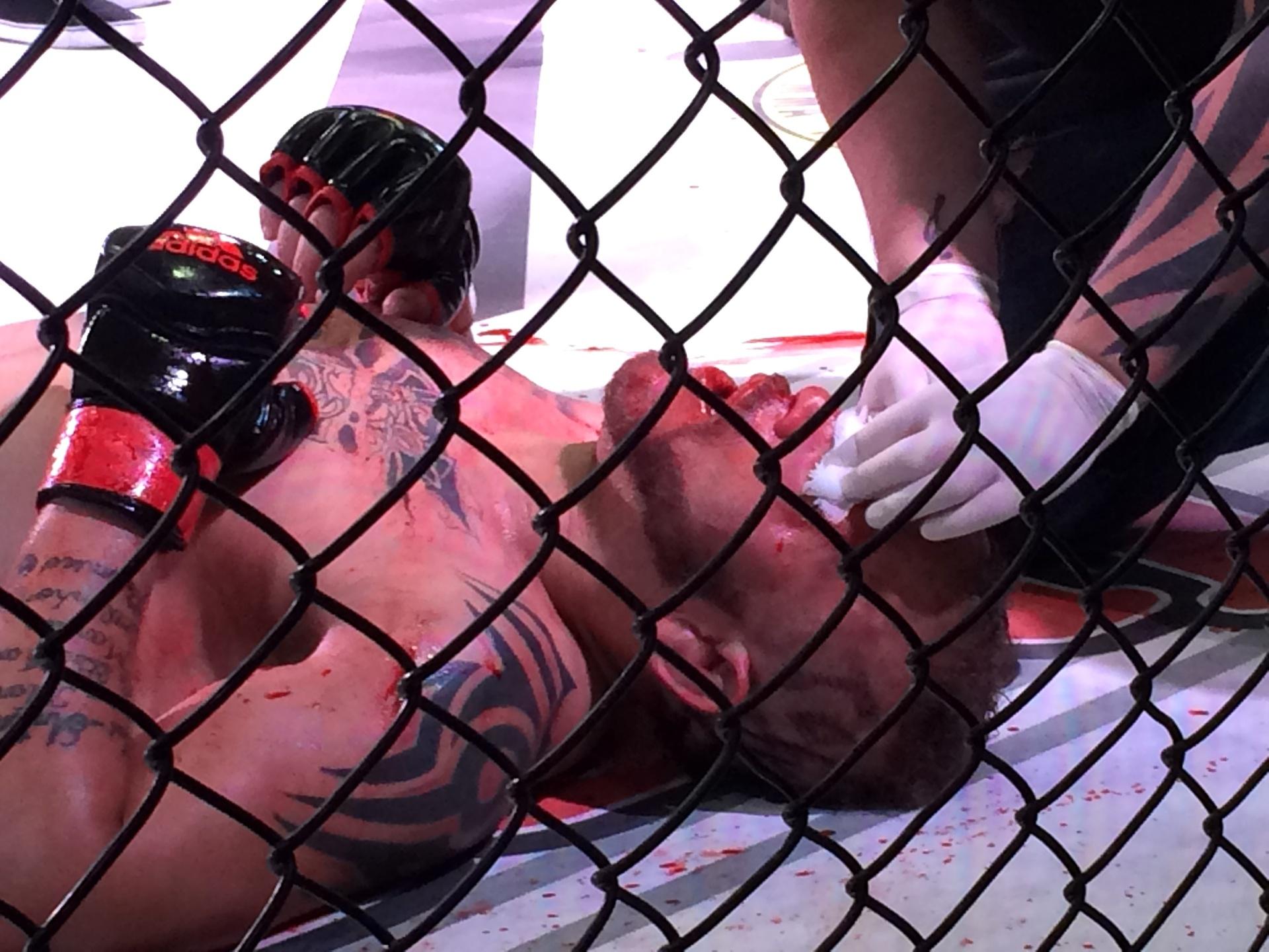 Lutador Geleia é atendido após tomar golpes de MMA em São Paulo